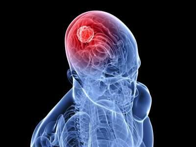 Эти признаки помогут распознать опухоль мозга